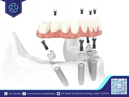 Phương pháp trồng răng Implant all on 4