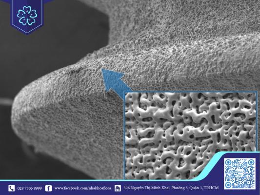 Bề mặt trụ implant được xử lý bằng xương sinh học