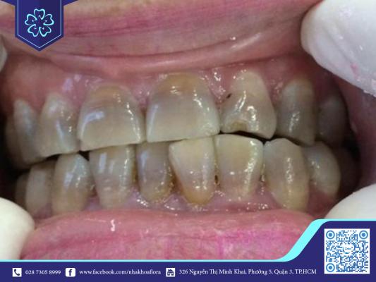 Răng bị nhiễm màu nên bọc răng sứ