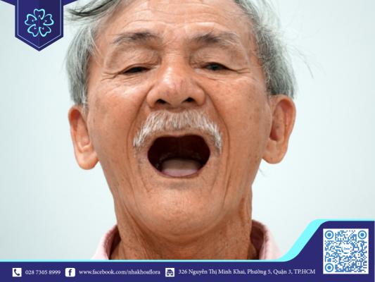 Mất răng ở độ tuổi trung niên là hiện tượng khá phổ biến (ảnh minh họa)