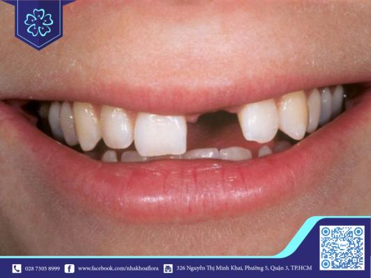 Tuổi trẻ mất răng có thể do tai nạn hoặc vệ sinh răng miệng kém (ảnh minh họa)