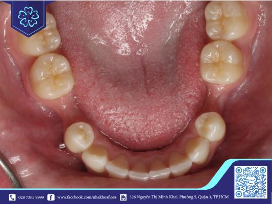 Xương hàm sẽ bị tiêu khi răng hàm bị mất lâu ngày nhưng không được cấy ghép răng Implant (ảnh minh họa)