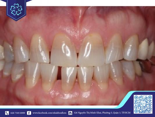 Răng bị sỉn màu nên bọc răng sứ 2 hàm