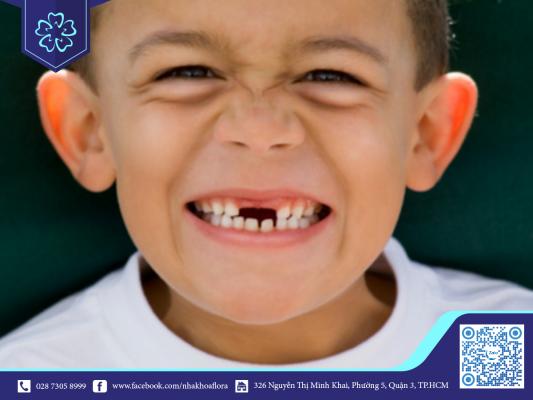 Chống chỉ định trồng răng ở trẻ em