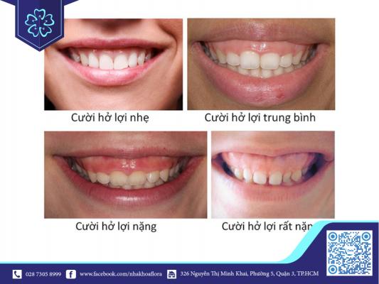 Các mức độ cười hở lợi (ảnh minh họa)