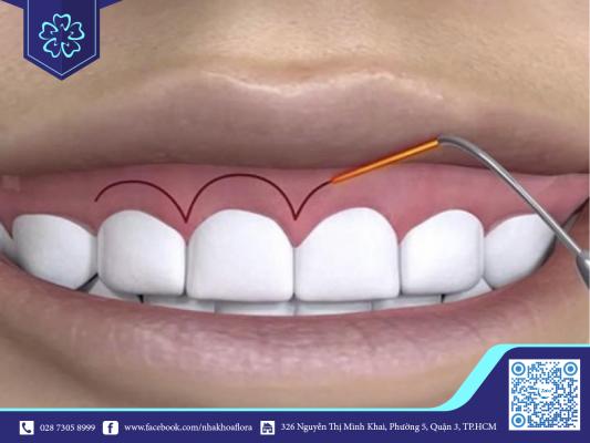 Điều trị cười hở lợi không gây đau nhức do được gây tê trước khi tiến hành (ảnh minh họa)