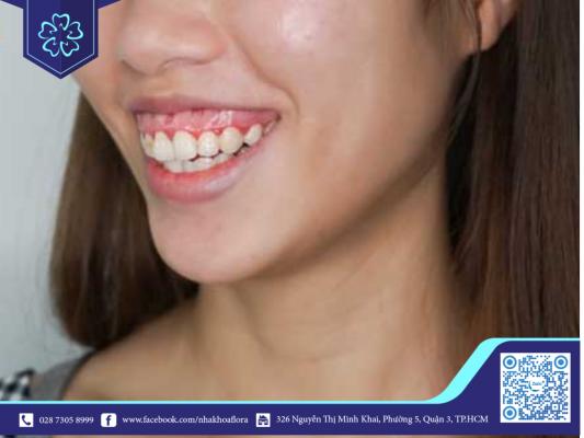 Nên điều trị cười hở lợi càng sớm càng tốt để đảm bảo thẩm mỹ