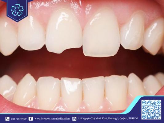 Nên bọc răng sứ với những khuyết điểm ở răng cửa