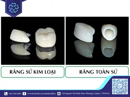 Giá bọc răng sứ 1 cái bao nhiêu phụ thuộc vào loại mão sứ