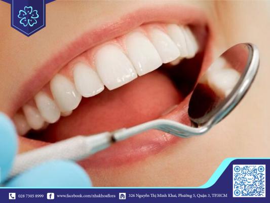 Răng Cercon có độ đẹp tự nhiên (ảnh minh họa)