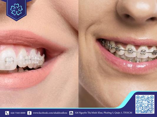Giá niềng răng mắc cài kim loại và mắc cài sứ là bao nhiêu?