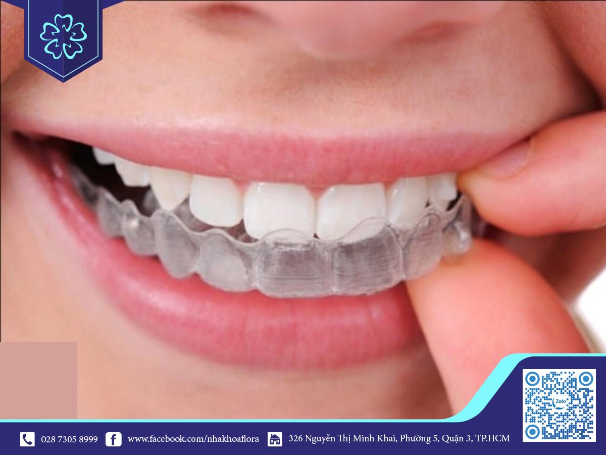 Niềng răng Invisalign ưu đãi hạn chế kẹo cao su tác động niềng răng