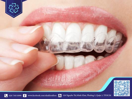 Niềng răng trong suốt hiệu quả với trường hợp nghiến răng