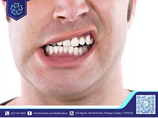 Nghiến răng có thể gây ảnh hưởng hiệu quả niềng răng
