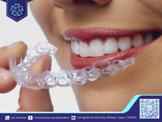 Kinh nghiệm niềng răng: Niềng răng Invisalign phù hợp với mọi lứa tuổi