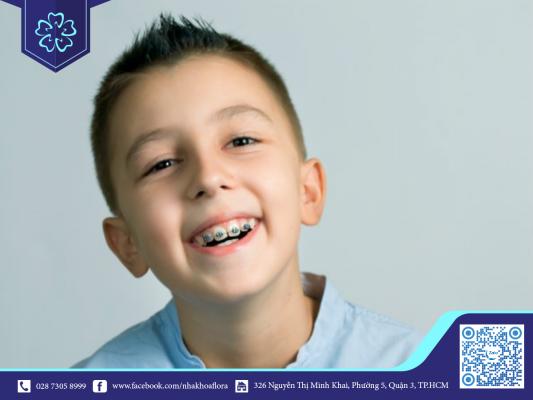 Độ tuổi vàng để niềng răng là từ 12 đến 16