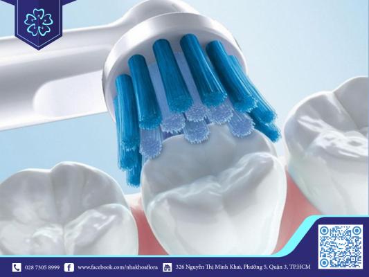 Nên lưu ý vệ sinh sạch răng miệng trong quá trình niềng răng (ảnh minh họa)
