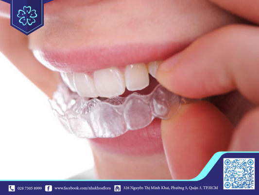 Lưu ý niềng răng trong suốt giúp đảm bảo kết quả điều trị (ảnh minh họa)