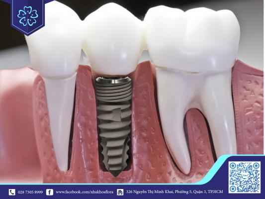 Nguyên nhân răng Implant lung lay có thể do lỏng khớp nối (ảnh minh họa)