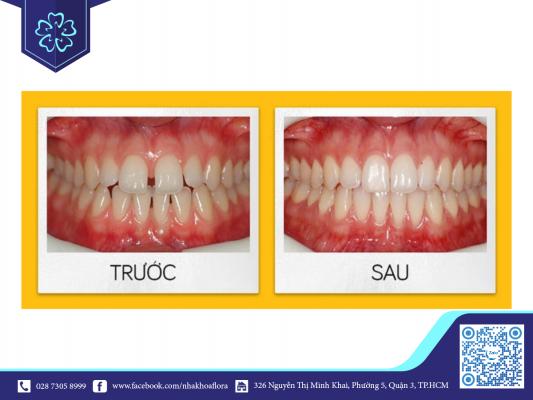 Điều trị răng thưa bằng Invisalign