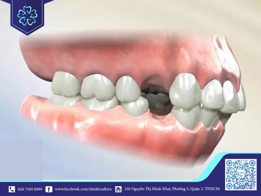 Nhổ răng trước khi niềng giúp răng dịch chuyển ổn định (ảnh minh họa)