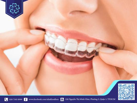 Niềng răng giúp dịch chuyển răng về đúng vị trí (ảnh minh họa)