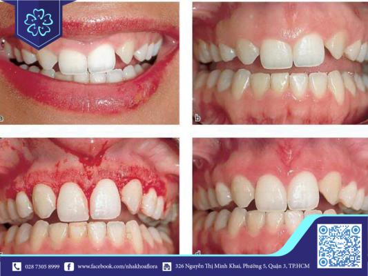 Chảy máu không ngừng sau phẫu thuật cười hở lợi cần phải tái khám sớm (ảnh minh họa)