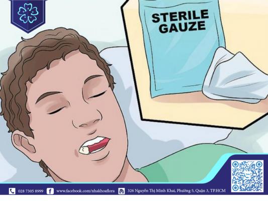 Nên cắn bông gạt để hạn chế máu chảy sau tiểu phẫu tại nhà (ảnh minh họa)
