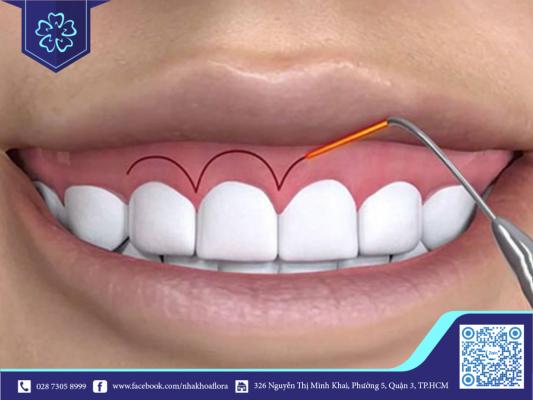Lộ nướu do thân răng ngắn (ảnh minh họa)
