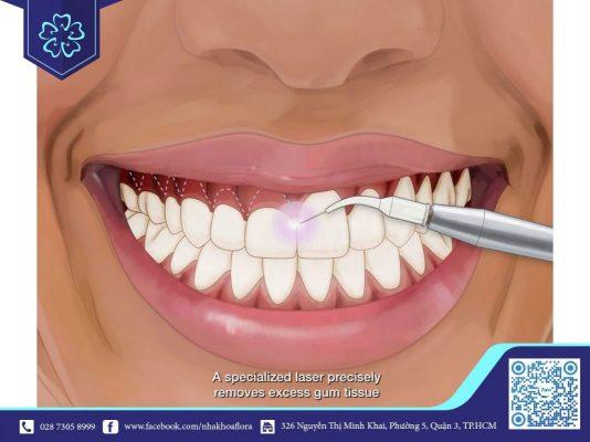 Phẫu thuật chữa cười hở lợi bằng cắt nướu đơn giản (ảnh minh họa)