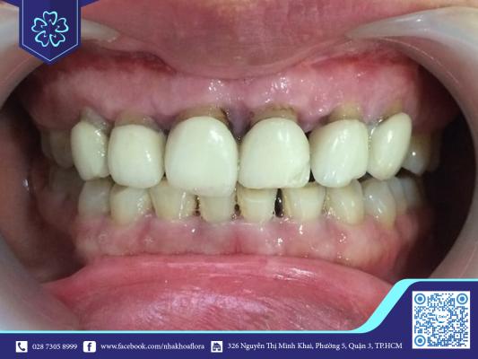 Tác hại bọc răng sứ sai cách (ảnh minh họa)
