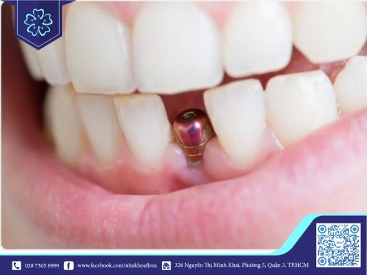 Quy trình cấy implant thường kéo dài từ 3 tuần đến 3 tháng (ảnh minh họa)