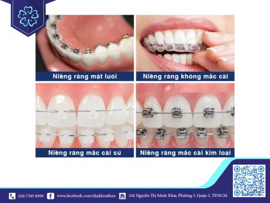 Mỗi phương pháp niềng răng đều không tác động xấu đến hàm