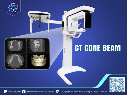 Máy CT Cone Beam hỗ trợ bọc răng