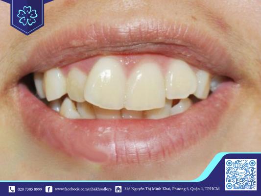 Răng lệch lạc nhiều sẽ kéo dài thời gian điều trị (ảnh minh họa)