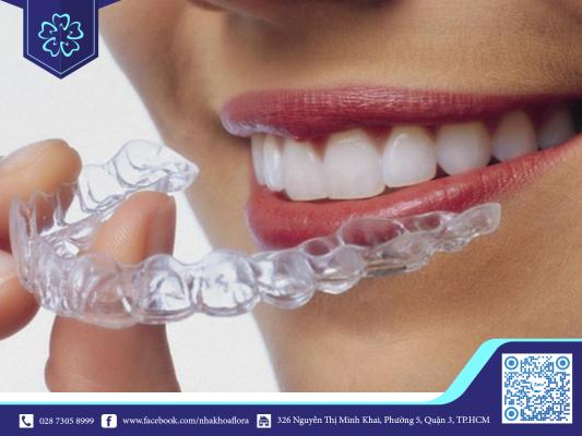 Thời gian niềng răng trong suốt phụ thuộc vào công nghệ niềng và mức độ lệch của răng miệng (ảnh minh họa)