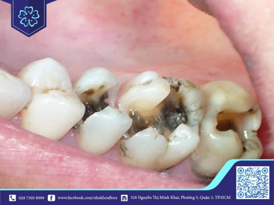 Vệ sinh răng miệng kém là nguyên nhân gây mất răng (ảnh minh họa)
