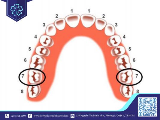 Vị trí răng cối số 7 trên hàm (ảnh minh họa)