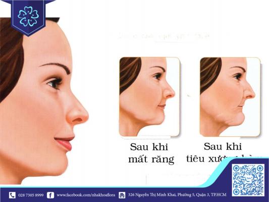 Da mặt sẽ bị chảy xệ khi bị mất răng một thời gian (ảnh minh họa)