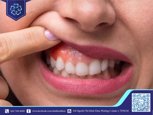 Viêm lợi không được điều trị sớm sẽ gây mất răng (ảnh minh họa)
