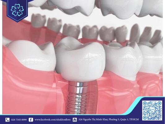 Trồng răng implant giúp răng khỏe mạnh đảm bảo ăn nhai hiệu quả (ảnh minh họa)