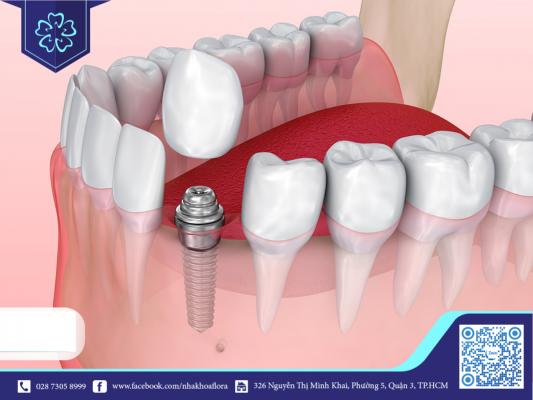 Trồng răng Implant giúp phục hồi răng số 3 bị mất hoàn hảo (ảnh minh họa)
