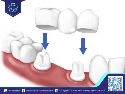 Phương pháp cầu răng sứ
