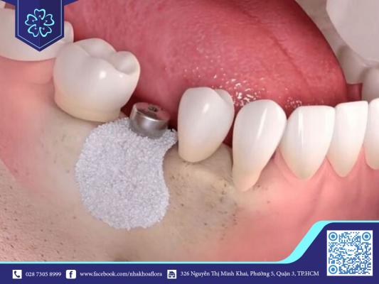 Khi xương hàm bị teo phải ghép xương mới trồng được răng Implant