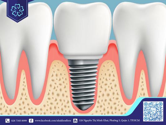 Răng giả Implant