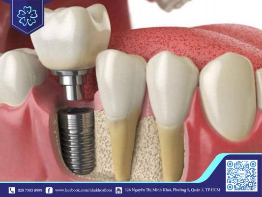 Trụ implant giúp phục hồi răng bị mất hiệu quả (ảnh minh họa)