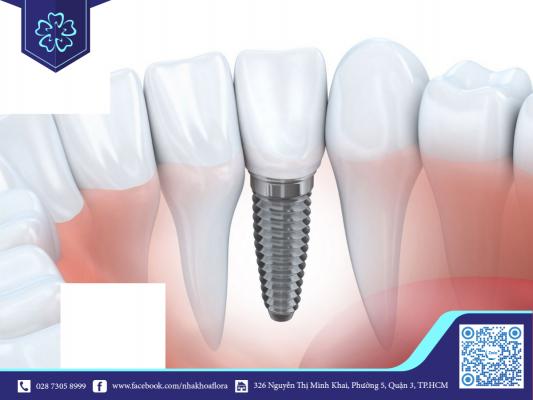 Răng Implant đẹp tự nhiên như răng thật (ảnh minh họa)