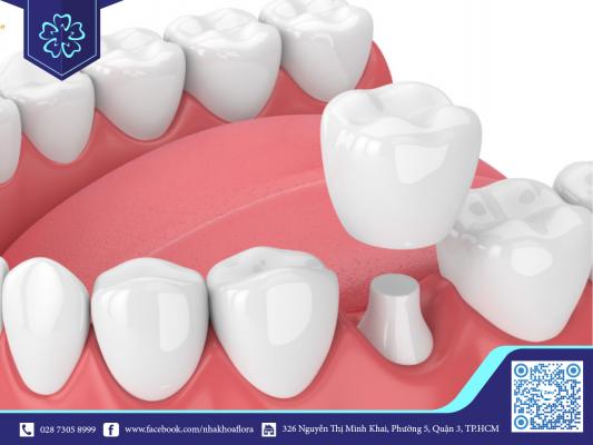 Tư vấn bọc răng sứ giúp bạn tiết kiệm chi phí (ảnh minh họa)
