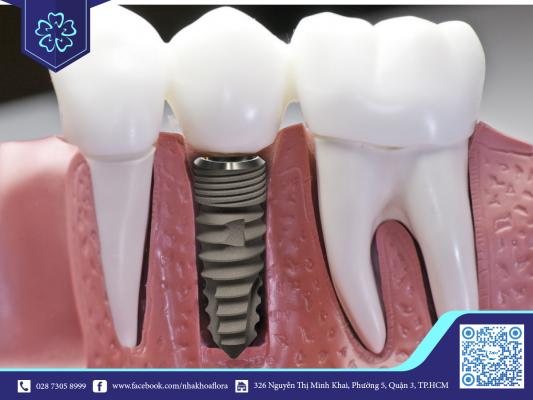 Chi phí trồng răng Implant phụ thuộc vào loại trụ răng được chọn