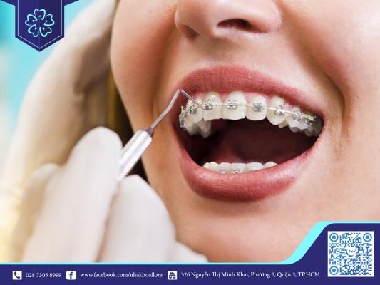 X quang niềng răng giúp đảm bảo kết quả niềng